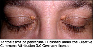 Possible symptoms of high cholesterol: Xanthelasma, fatty deposids around the eye lids.