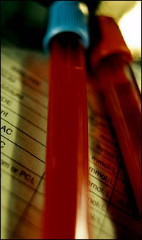 Check you cholesterol numbers with a blood test at your doctor's.