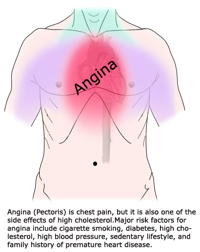 Pain in the chest (angina pectoris) might be a result of too high a concentration of cholesterol in your body.